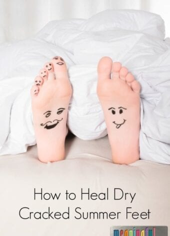 How to Heal Dry Cracked Summer Feet
